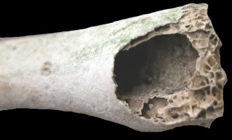 hollow20bone